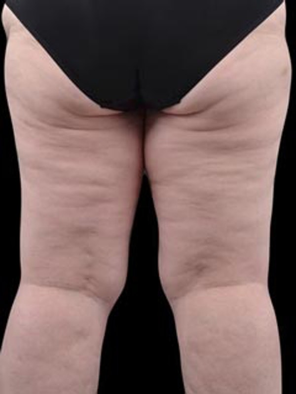 Thighs Gallery - Patient 13900704 - Image 5