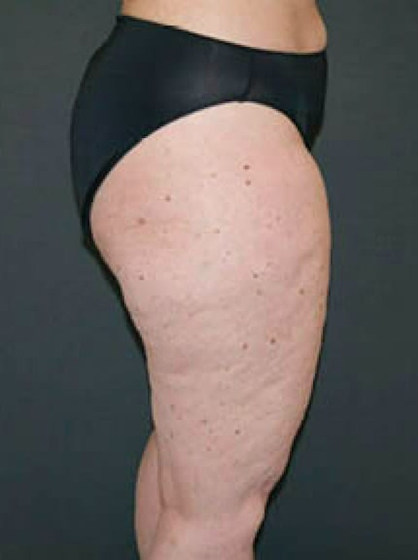 Thighs Gallery - Patient 13900705 - Image 1