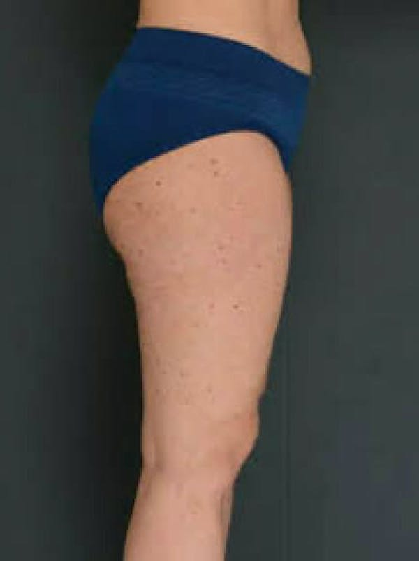Thighs Gallery - Patient 13900705 - Image 2