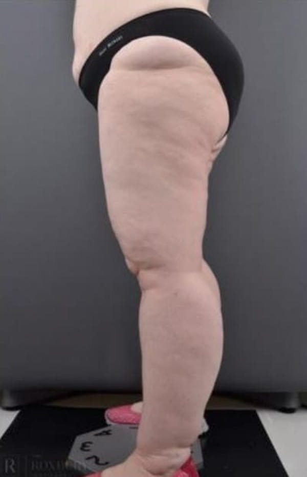 Thighs Gallery - Patient 13900706 - Image 1