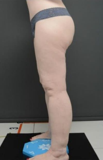 Thighs Gallery - Patient 13900706 - Image 2