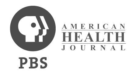 Dr. David Amron Discusses Lipedema on PBS's American Health Journal