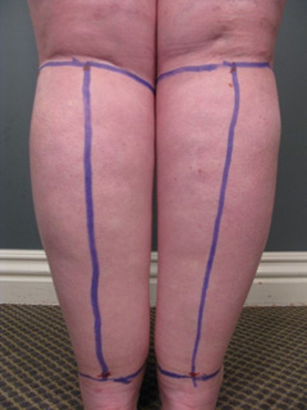 Calves & Ankles Gallery - Patient 13934378 - Image 1