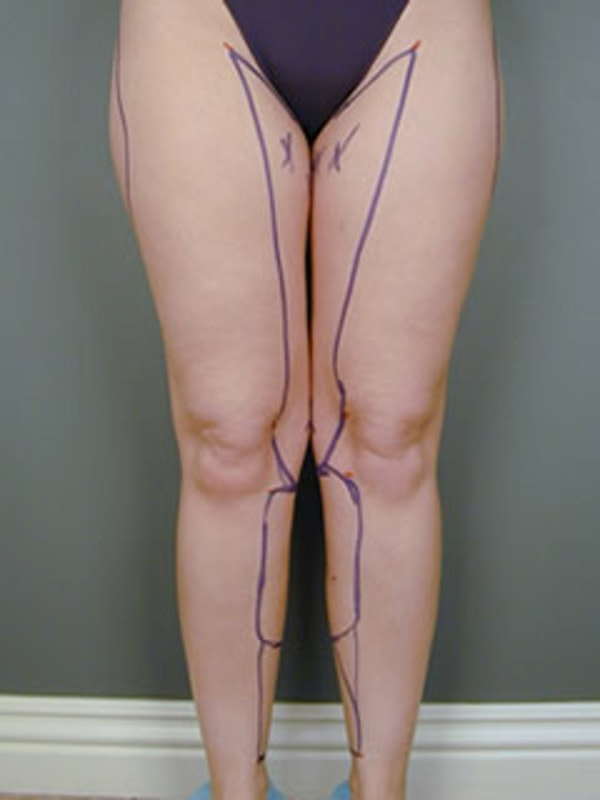 Calves & Ankles Gallery - Patient 13934379 - Image 1