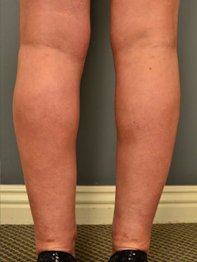 Calves & Ankles Gallery - Patient 13934378 - Image 2