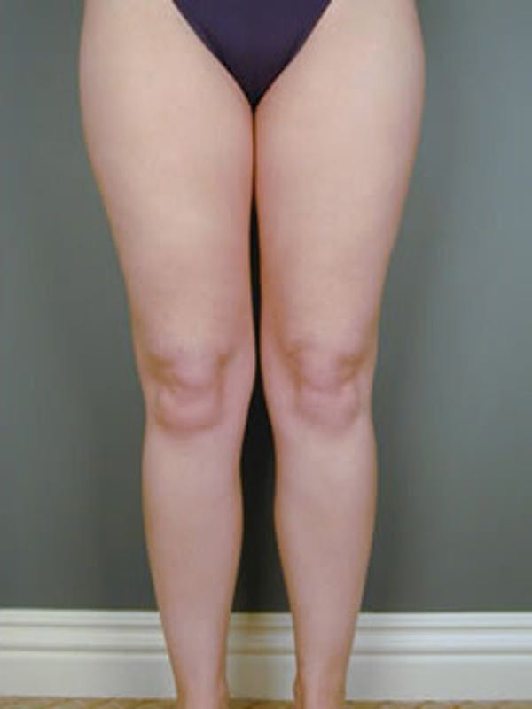 Calves & Ankles Gallery - Patient 13934379 - Image 2