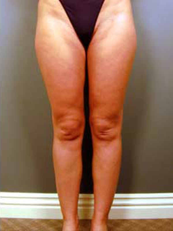 Calves & Ankles Gallery - Patient 13934380 - Image 2