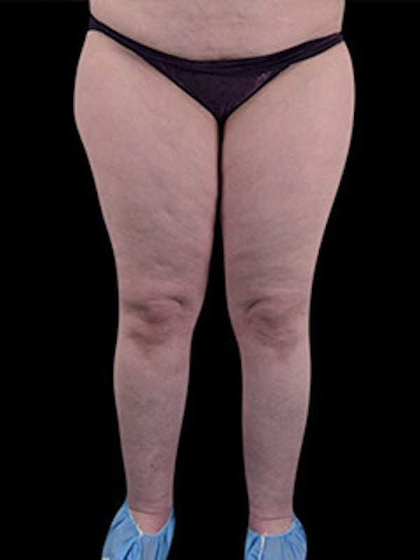 Calves & Ankles Gallery - Patient 13934381 - Image 1