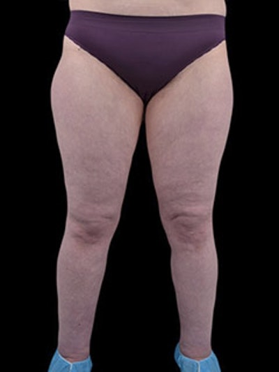Calves & Ankles Gallery - Patient 13934381 - Image 2