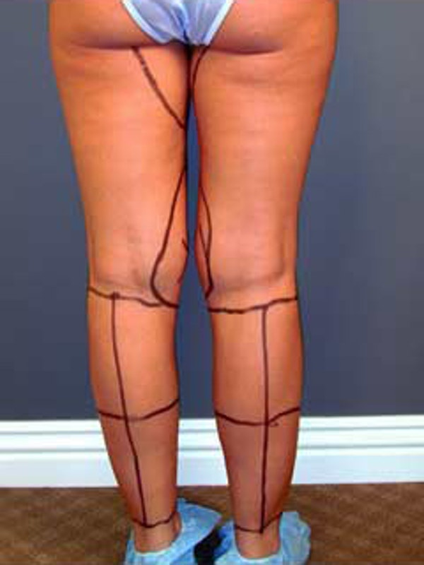 Calves & Ankles Gallery - Patient 13934380 - Image 3