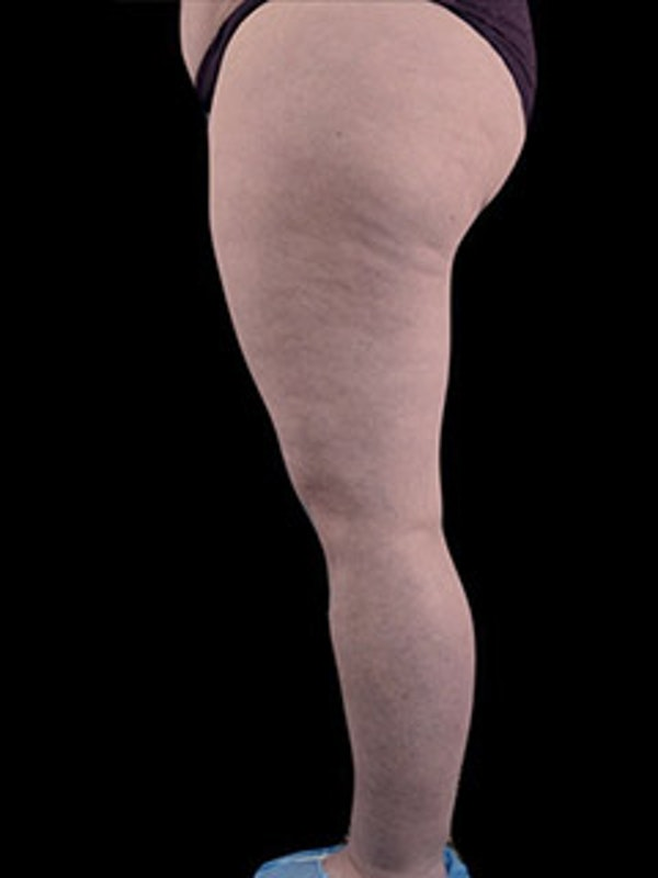 Calves & Ankles Gallery - Patient 13934381 - Image 3
