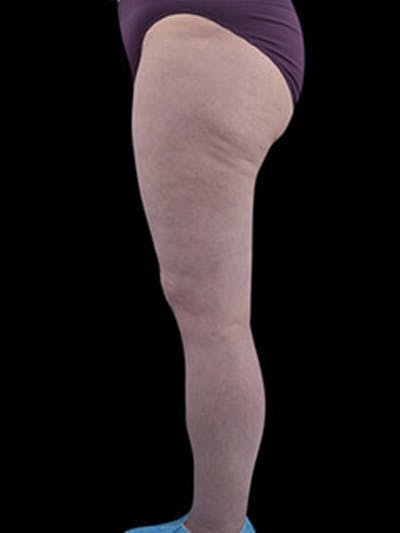 Calves & Ankles Gallery - Patient 13934381 - Image 4