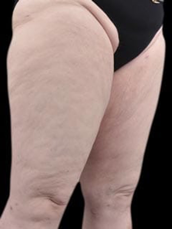 Calves & Ankles Gallery - Patient 13934382 - Image 4