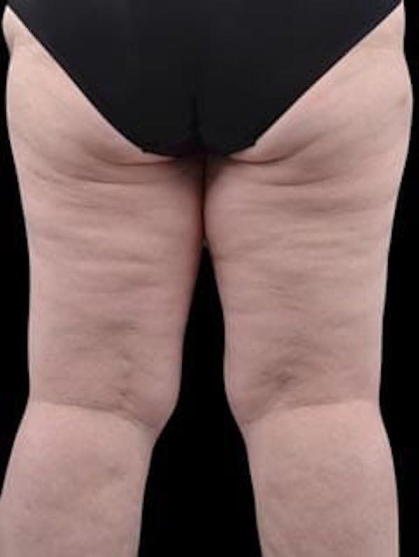 Calves & Ankles Gallery - Patient 13934382 - Image 5