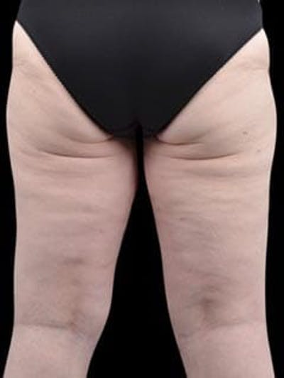 Calves & Ankles Gallery - Patient 13934382 - Image 6