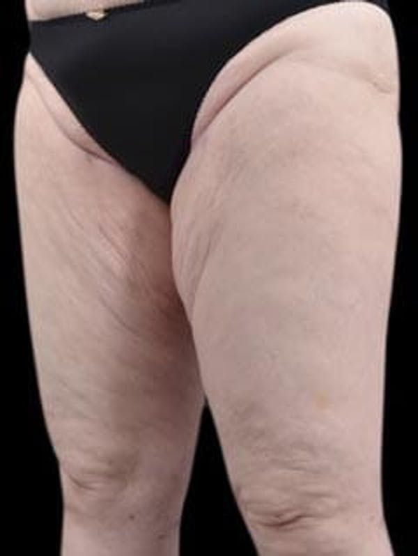 Calves & Ankles Gallery - Patient 13934382 - Image 8