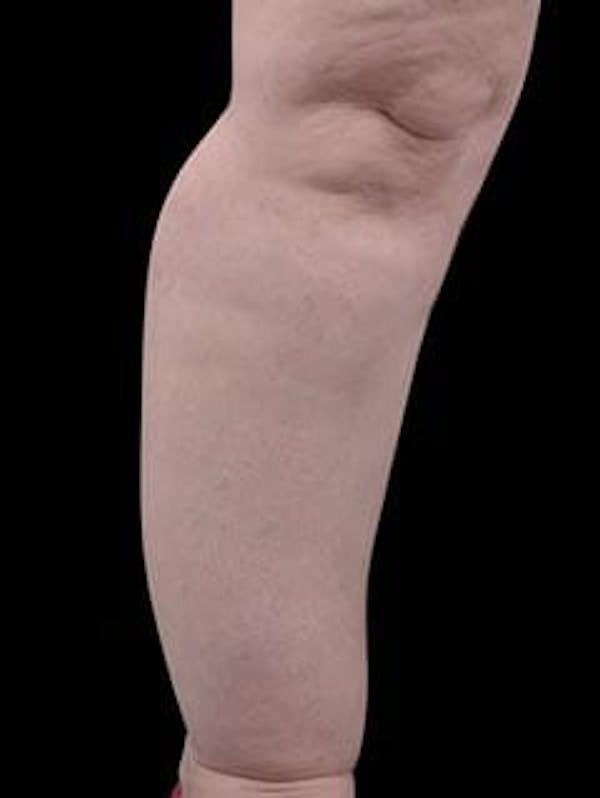 Calves & Ankles Gallery - Patient 13934382 - Image 9