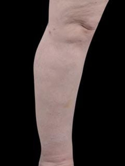 Calves & Ankles Gallery - Patient 13934382 - Image 10