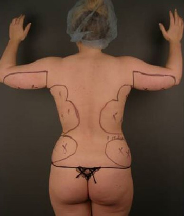 Body Gallery - Patient 13934385 - Image 1