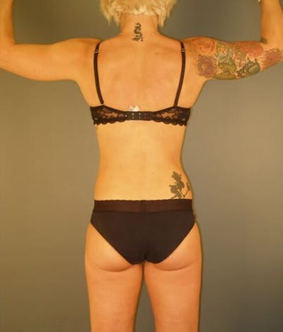 Body Gallery - Patient 13934384 - Image 2