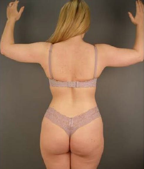 Body Gallery - Patient 13934385 - Image 2