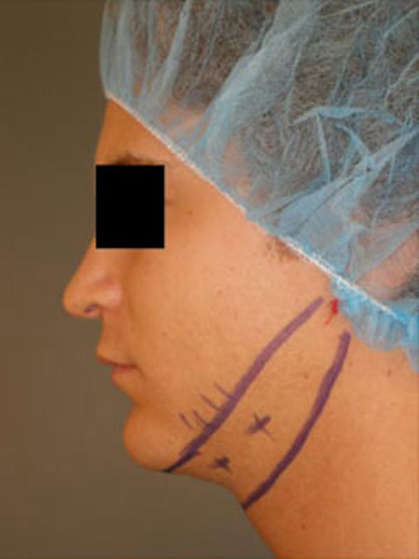 Neck Gallery - Patient 13934393 - Image 1