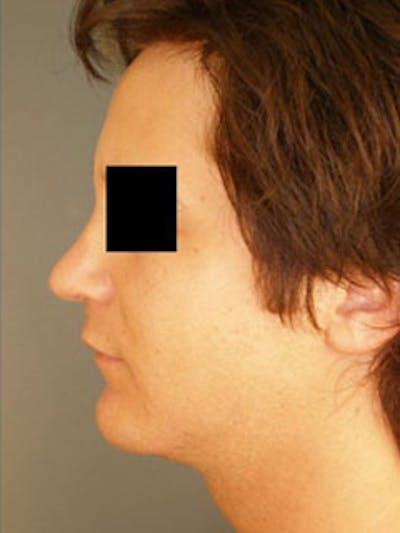 Neck Gallery - Patient 13934393 - Image 2