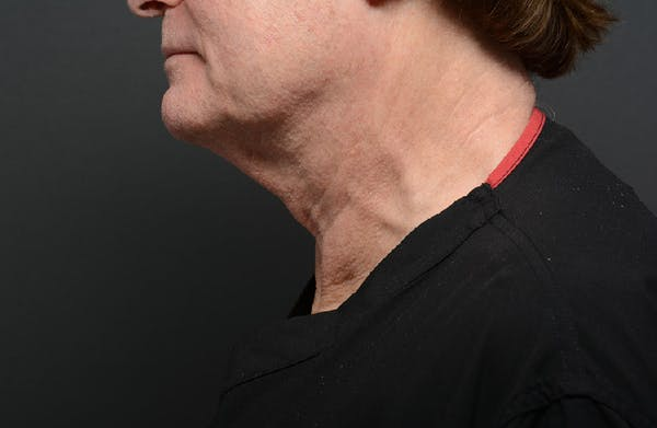 Neck Gallery - Patient 13934396 - Image 1