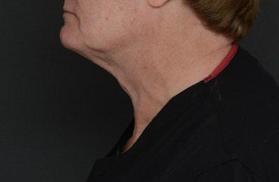 Neck Gallery - Patient 13934396 - Image 2