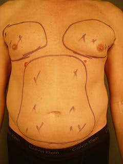 Chest Gallery - Patient 13934576 - Image 1