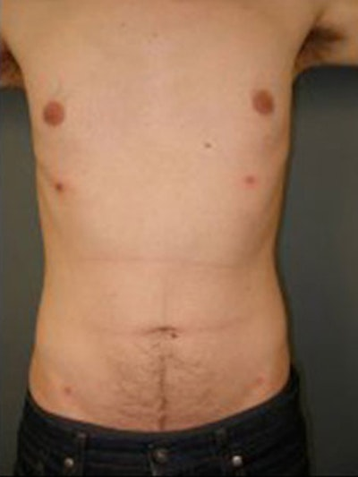 Chest Gallery - Patient 13934575 - Image 2