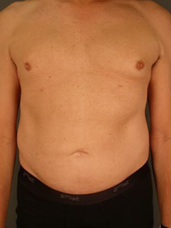Chest Gallery - Patient 13934576 - Image 2