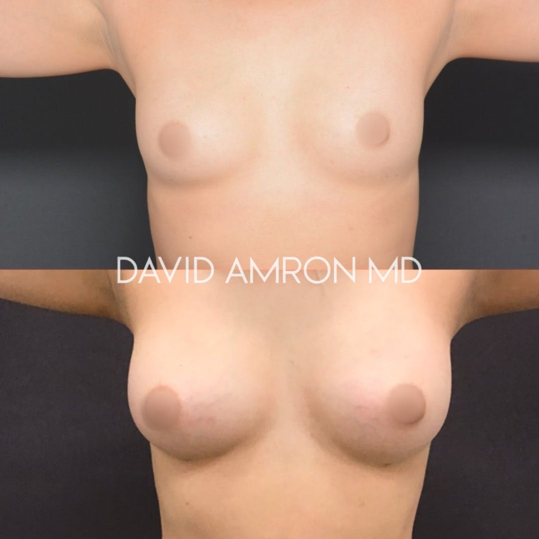 Breast Gallery - Patient 26865340 - Image 1