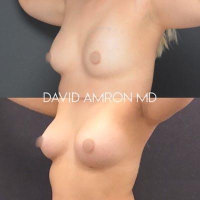 Breast Gallery - Patient 26865340 - Image 2