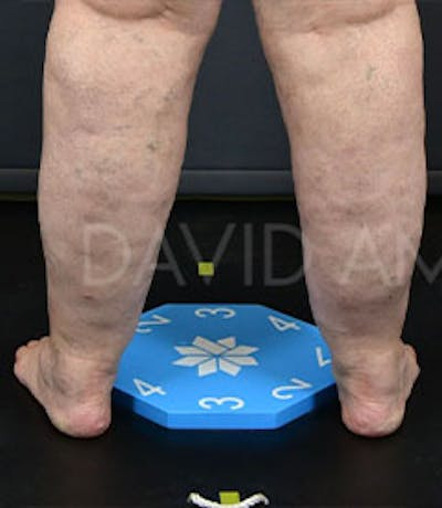 Calves & Ankles Gallery - Patient 42556838 - Image 1