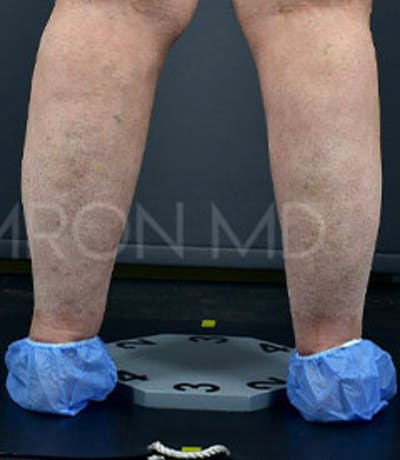 Calves & Ankles Gallery - Patient 42556838 - Image 2
