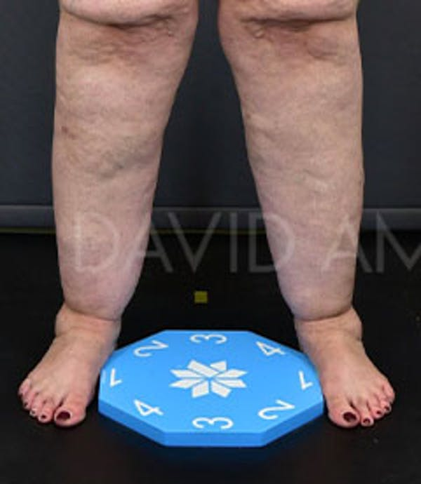 Calves & Ankles Gallery - Patient 42556838 - Image 3