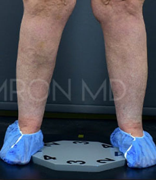 Calves & Ankles Gallery - Patient 42556838 - Image 4