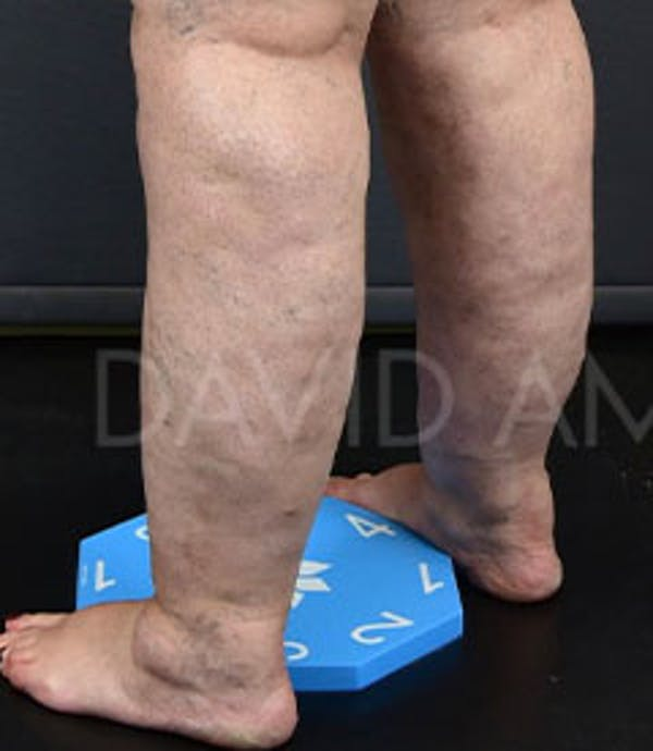 Calves & Ankles Gallery - Patient 42556838 - Image 5