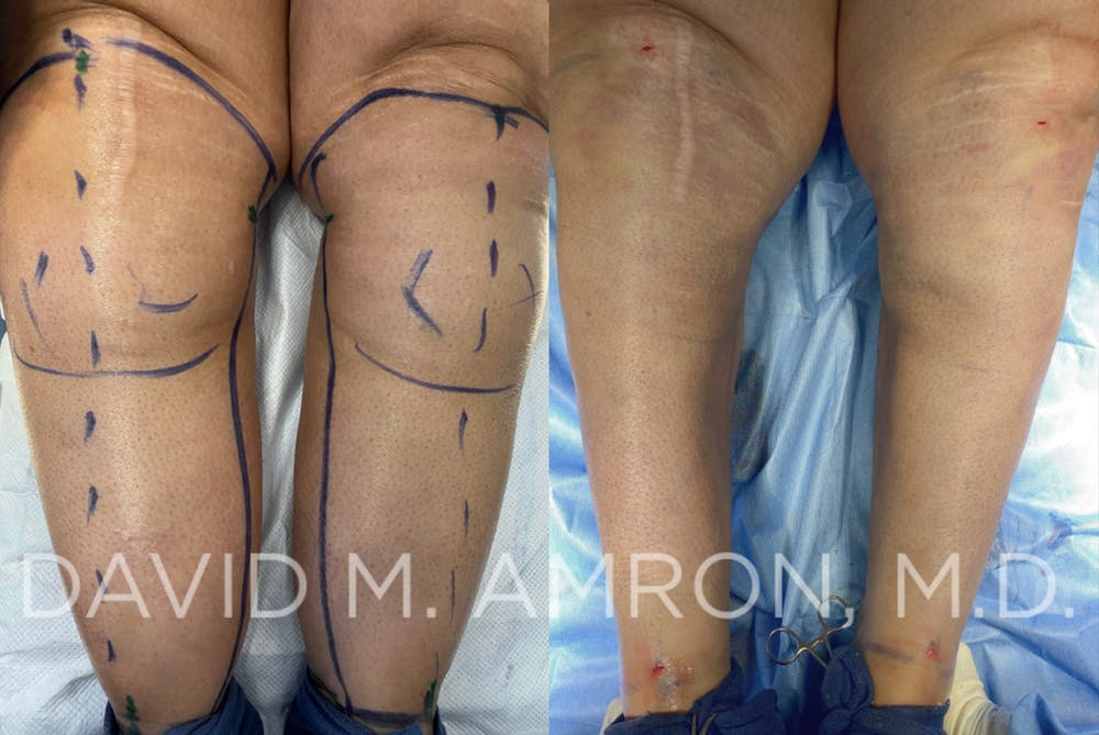 Calves & Ankles Gallery - Patient 45365779 - Image 1