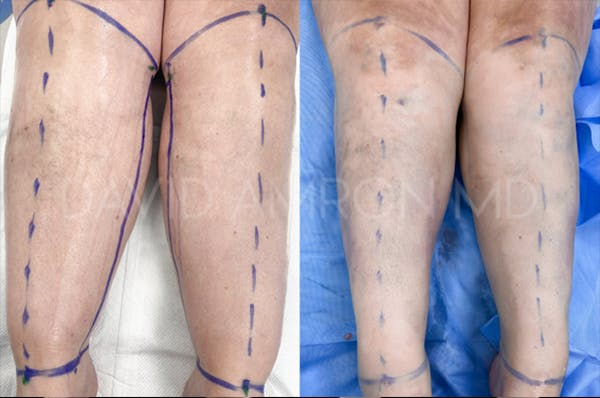 Calves & Ankles Gallery - Patient 46617107 - Image 1