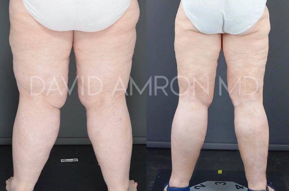 Hips Gallery - Patient 48369560 - Image 1