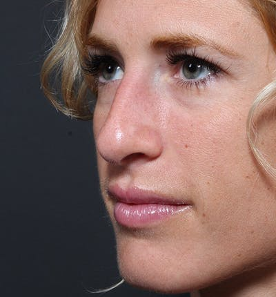 Rhinoplasty Gallery - Patient 14089515 - Image 1