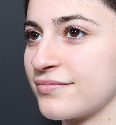 Rhinoplasty Gallery - Patient 14089516 - Image 1