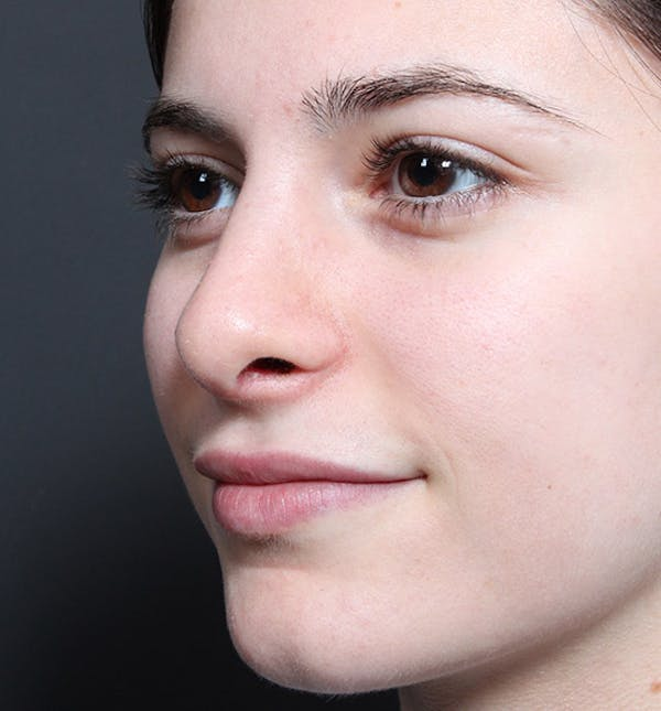 Rhinoplasty Gallery - Patient 14089516 - Image 2