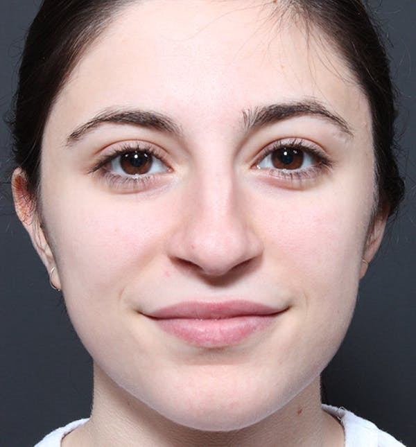 Rhinoplasty Gallery - Patient 14089516 - Image 3