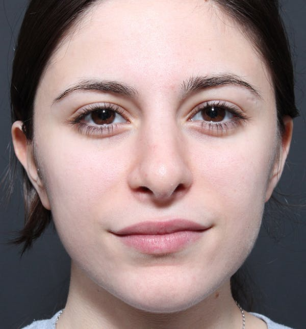 Rhinoplasty Gallery - Patient 14089516 - Image 4