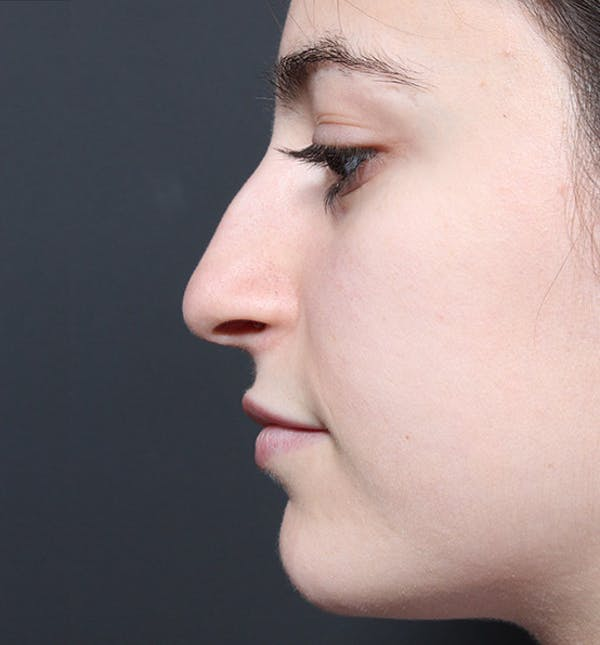 Rhinoplasty Gallery - Patient 14089516 - Image 5