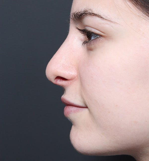 Rhinoplasty Gallery - Patient 14089516 - Image 6