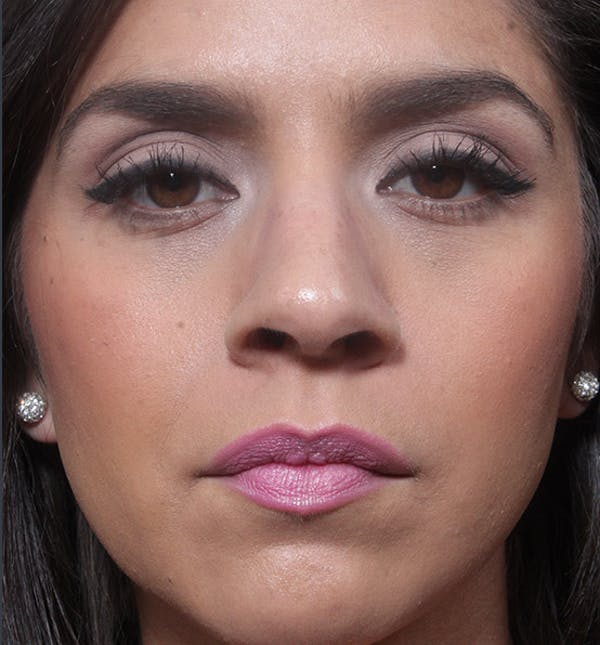 Rhinoplasty Gallery - Patient 14089522 - Image 3